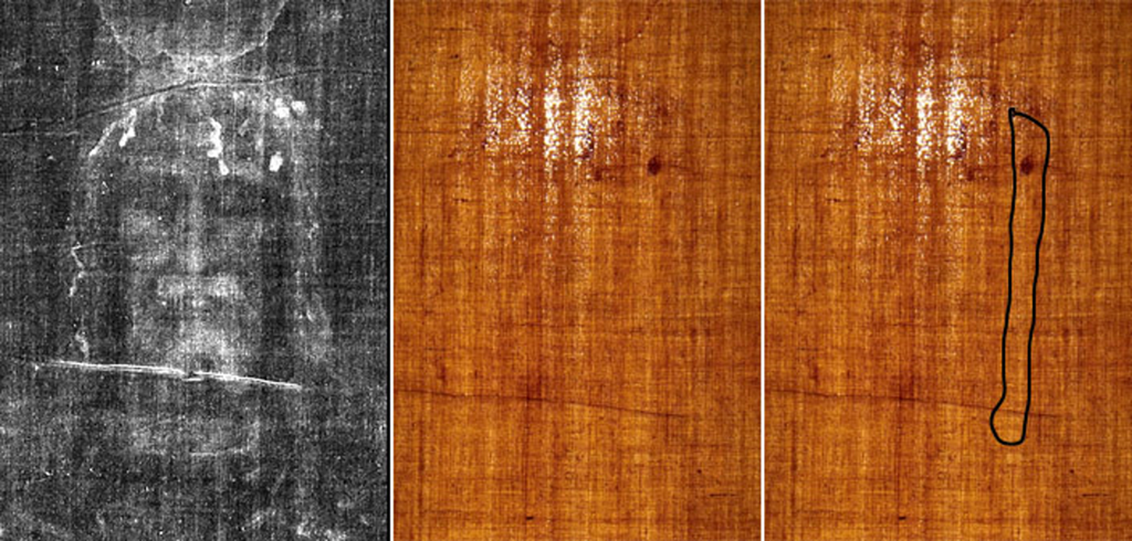 Discrepancies in the radiocarbon dating area of turin shroud